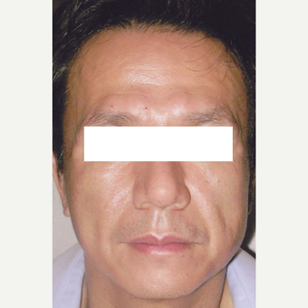 54 year old man treated with Botox, HA Filler, Sculptra before 3056192