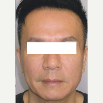 54 year old man treated with Botox, HA Filler, Sculptra after 3056192