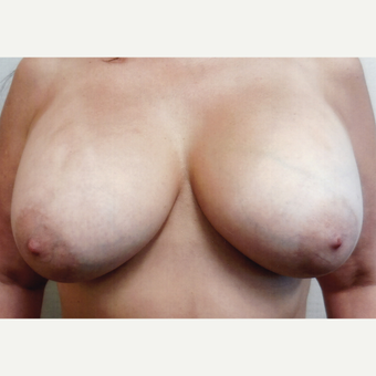 45-54 year old woman treated with Breast Augmentation after 3128629