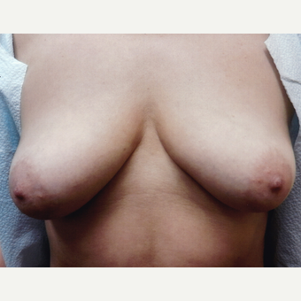 45-54 year old woman treated with Breast Augmentation before 3128629