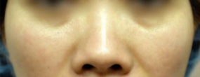 Woman treated with Asian Rhinoplasty