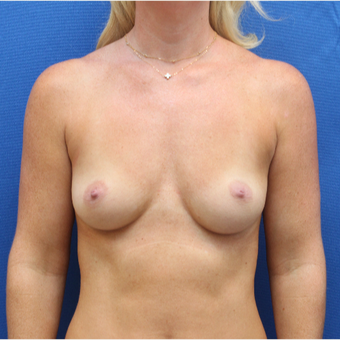 18-24 year old woman treated with Breast Augmentation before 3104453