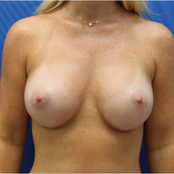 18-24 year old woman treated with Breast Augmentation after 3104453