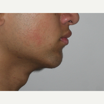 Young man treated with Chin Surgery after 3001839