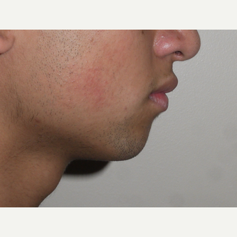 Young man treated with Chin Surgery before 3001839