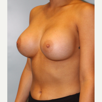 25-34 year old woman treated with Breast Augmentation after 3754096