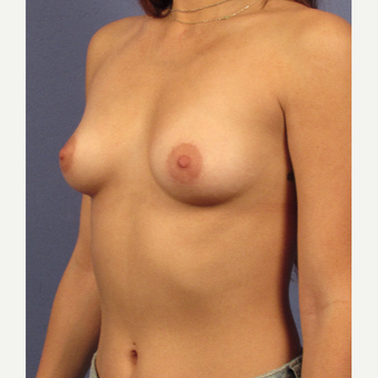25-34 year old woman treated with Breast Augmentation before 3754096