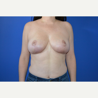 35-44 year old woman treated with Breast Reduction after 3744075