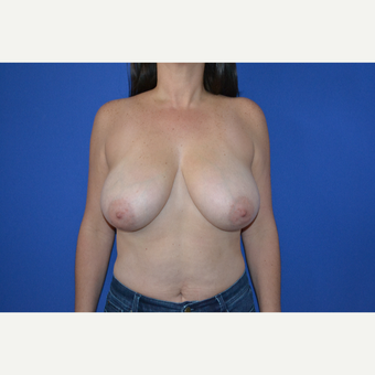35-44 year old woman treated with Breast Reduction before 3744075