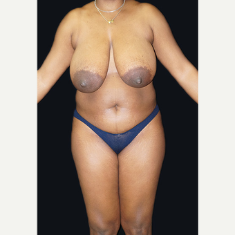 35-44 year old woman treated with Breast Reduction before 3332927