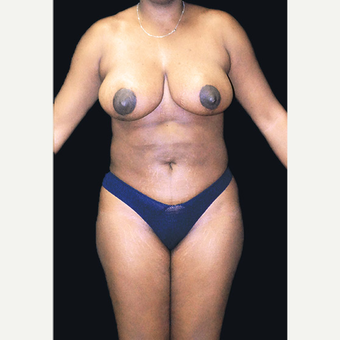 35-44 year old woman treated with Breast Reduction after 3332927