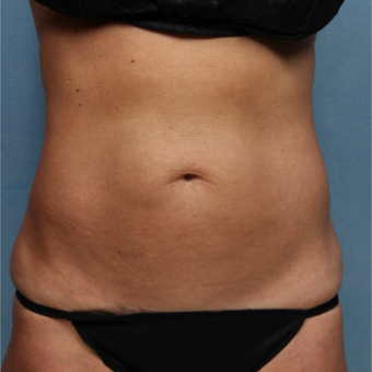 45-54 year old woman treated with CoolSculpting after 3224498