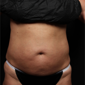 45-54 year old woman treated with CoolSculpting before 3224498