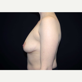 35-44 year old woman treated with Breast Implants before 3441505