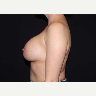 35-44 year old woman treated with Breast Implants after 3441505