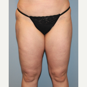 35-44 year old woman treated with Liposuction after 3589579