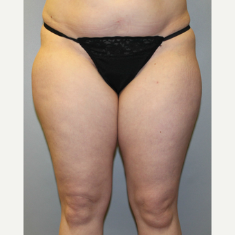 35-44 year old woman treated with Liposuction before 3589579