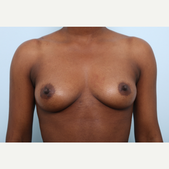 Breast Augmentation before 3425215