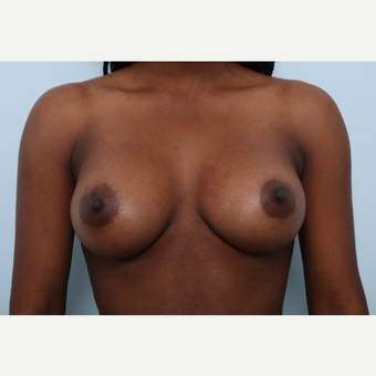 Breast Augmentation after 3425215