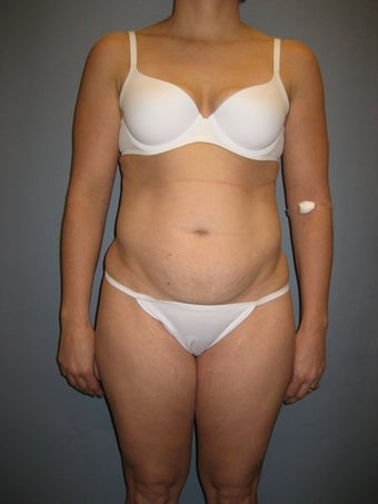 33 year old Tummy Tuck patient 1325302