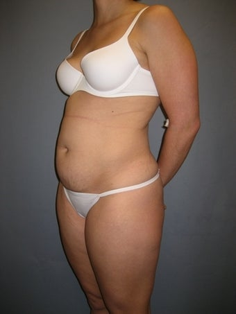 33 year old Tummy Tuck patient before 1325302