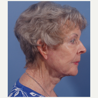 75 and up year old woman treated with Facelift after 3749108