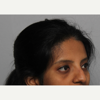 25-34 year old woman treated with Rhinoplasty before 3424439