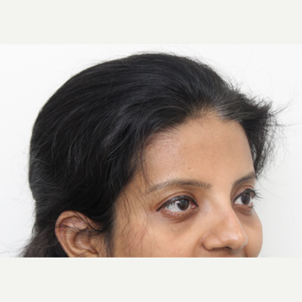 25-34 year old woman treated with Rhinoplasty after 3424439