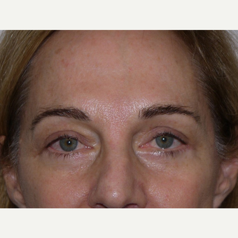 Eyelid Surgery after 3744010