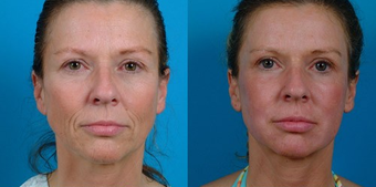45-year-old woman treated with Facial Fat Transfer. before 574293