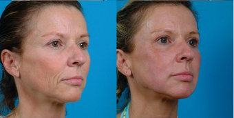 45-year-old woman treated with Facial Fat Transfer. after 574293