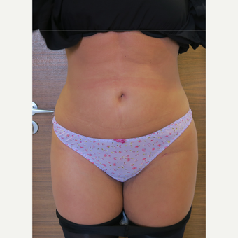 25-34 year old woman treated with Liposuction after 3499853