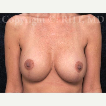 41year old woman with loss of breast volume and loose skin underwent full Breast Lift with Implants. after 1912607