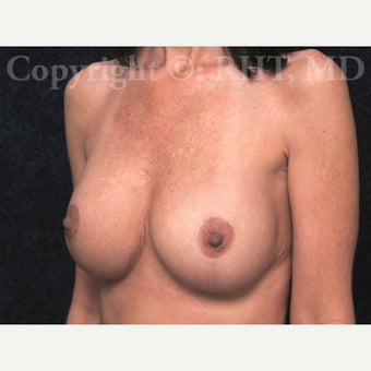 41year old woman with loss of breast volume and loose skin underwent full Breast Lift with Implants. 1912607
