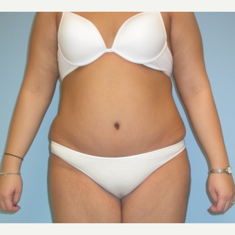20 year old woman treated with Tummy Tuck after 3375471