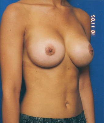 Breast Augmentation after 1251964