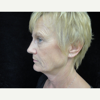 55-64 year old woman treated with Lower Face Lift before 3823316