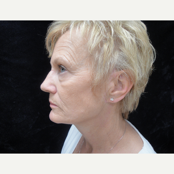 55-64 year old woman treated with Lower Face Lift after 3823316