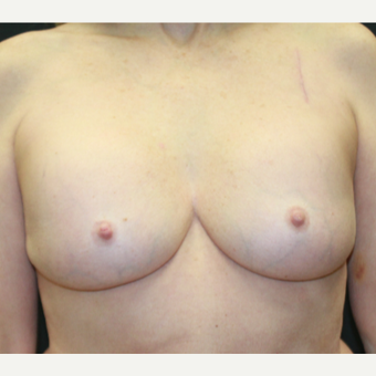 55-64 year old woman treated with Breast Implants before 3225694