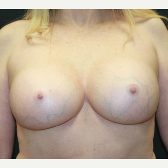 55-64 year old woman treated with Breast Implants after 3225694
