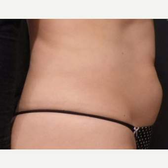 Abs after 2 cycles of CoolSculpting before 3265098