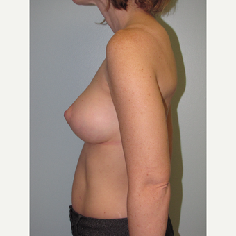 35-44 year old woman treated with Breast Lift with Implants after 3609114