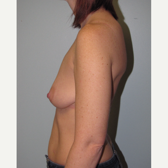 35-44 year old woman treated with Breast Lift with Implants before 3609114