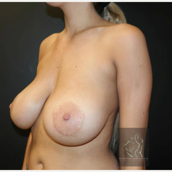 25-34 year old woman treated with Breast Lift before 3109631