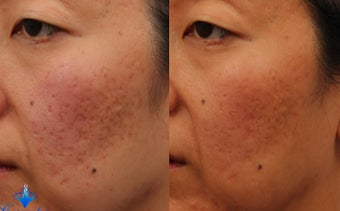 25-34 year old woman treated with Acne Scars Treatment before 3623819