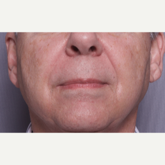 65-74 year old man treated with Sculptra after 2984334