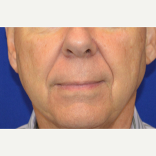 65-74 year old man treated with Sculptra before 2984334