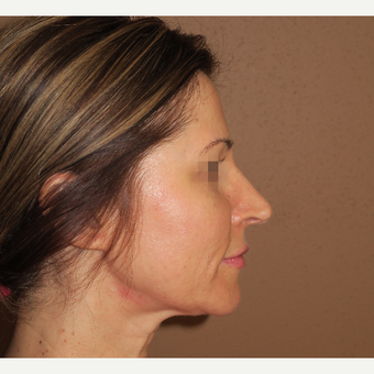 35-44 year old woman treated with Rhinoplasty before 2981652