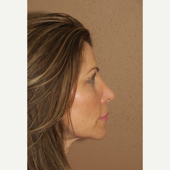 35-44 year old woman treated with Rhinoplasty after 2981652