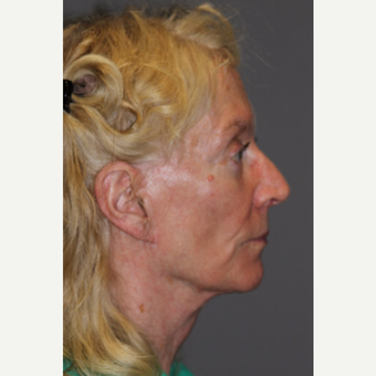 65-74 year old woman treated with Facelift after 3286757
